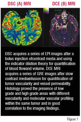 DSC acquires a series of EPI images after a bolus injection od contrast media and ising the indicator dilution theory for quantification of blood flow and volume.
