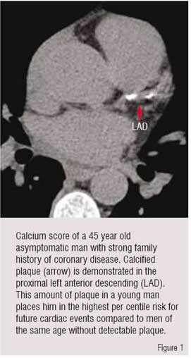 Calcium scoring, a popular method of cardiac evaluation using Electron Beam CT technology