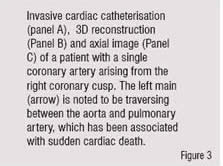 The left mailn arrow is noted to be traversing between the aorta and pulmonary artery, whisn has the associated with sudden cardiac death