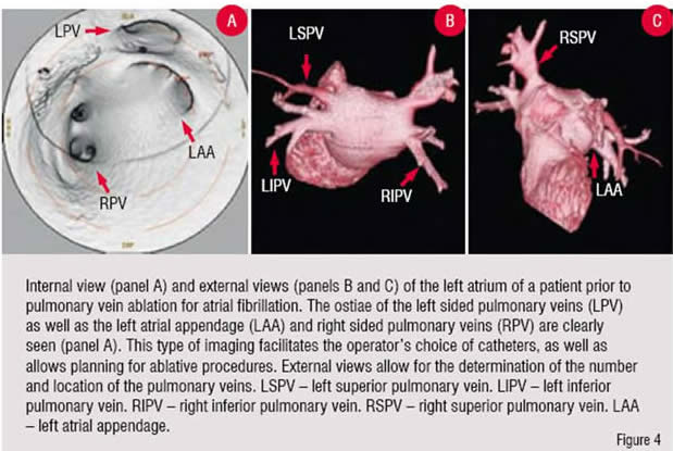 Internal View(Panel A) and External Views(Panel B and C) of the left sided pulmonary vein ablation for atrial fibrillation.