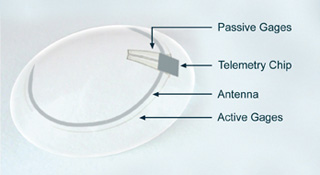 Glaucoma sensor which can be worn like a contact lens
