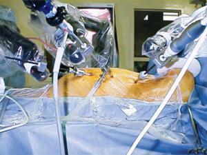 Robotic Cardiac Surgery 2