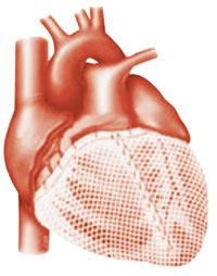 Cardiac wrap surgery