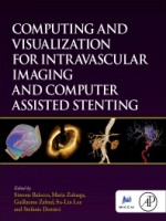 Computing And Visualization For Intravascular Imaging And Computer Assisted Stenting, 1st Edition