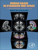 Human Brain in Standard MNI Space, 1st Edition