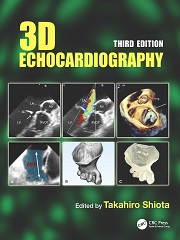 3D Echocardiography