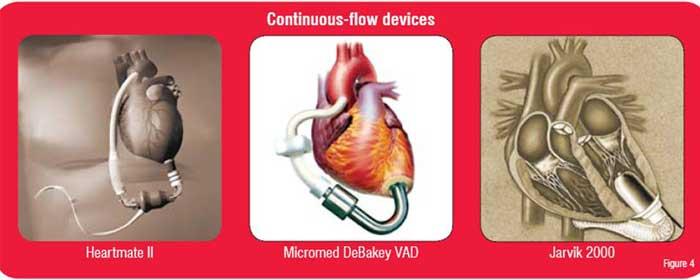 Contionuous Flow Devices