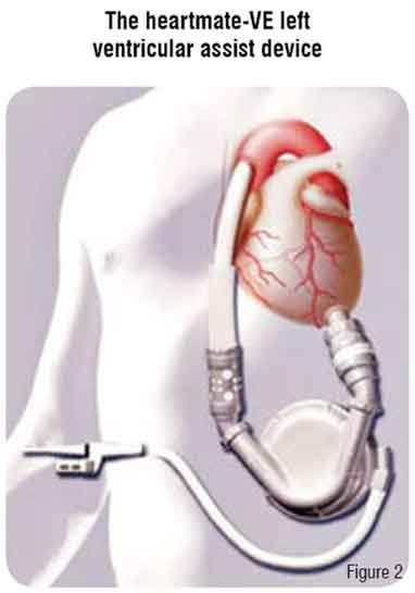 Heartmate Ve Left Ventricular Assist Device